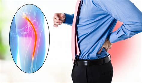 sciatica home treatment 3 best treatments home remedies for sciatica definition symptoms and