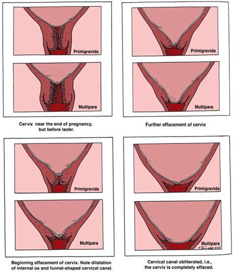 cervix diagram during pregnancy cervical dystocia causes symptoms treatment cervical