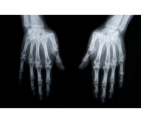 osteoporosis slideshow what is osteoporosis and how do