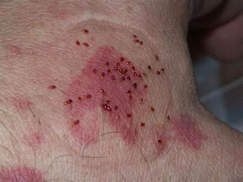 Bed Bug Bites 8 Definite Symptoms And Signs And Their Treatment Strategy