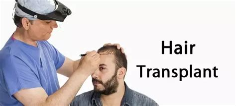 best hair transplant doctors in america list of the best hair transplant doctors regrow hair