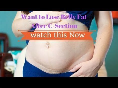 Fastest Way To Lose Belly After C Section by 25 Best Ideas About C Section Belly On C