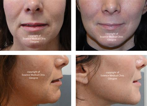 sagging jowls treatments for sagging jowls jowl reduction puppet facelift lunch time facelift thread facelift