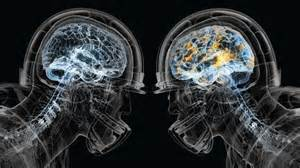 Football concussions football and newest technology on pinterest