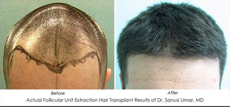 transplant hair from chest to head hair restoration using body hair ahb