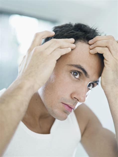 test capelli test genetico calvizie 187 larc