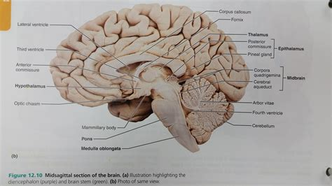 midsagittal section of the brain diagram chapter 12 the central nervous system at bellevue