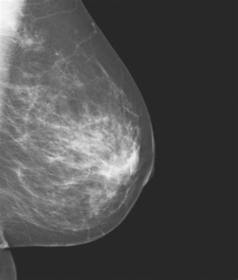 Cabinet Mammographie by Cabinet Mammographie