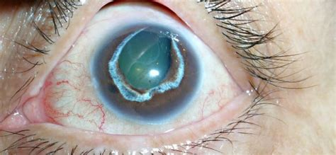 Obat Katarak Tradisional Paling Uh obat tradisional glaukoma mata paling uh dan efektif