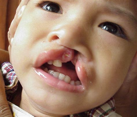 s new smile a baby with cleft lip and palate books treatment for cleft lip and cleft palate