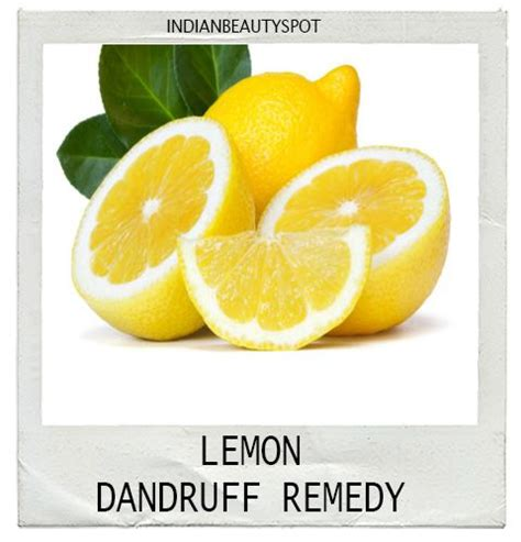 best 25 dandruff home remedies ideas that you will like
