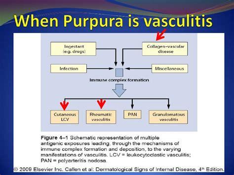 Sle Quantitative Language Résumé Pupura In A Patient With Lupus