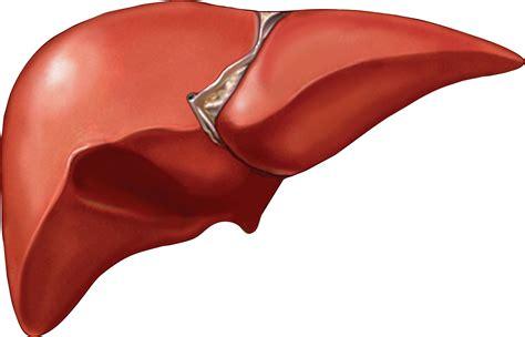 pcos and non alcoholic fatty liver disease nafld