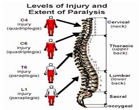 spinal cord injury diagram spine levels diagram spine get free image about wiring