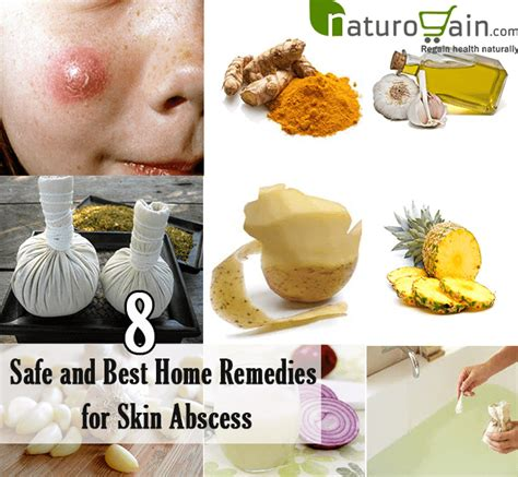 8 safe and best home remedies for skin abscess