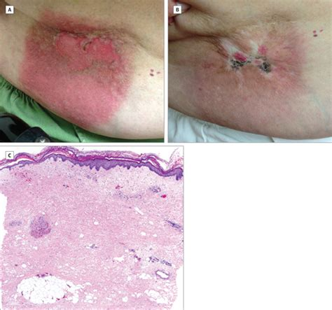 rash on abdomen after c section recurrent painful abdominal rash dermatology jama