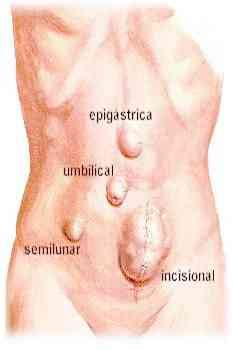ventral hernia symptoms causes pictures repair and surgery