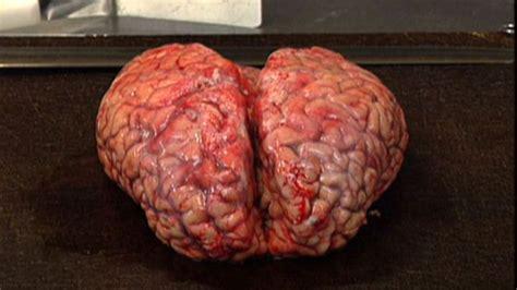 for the brain brain bank