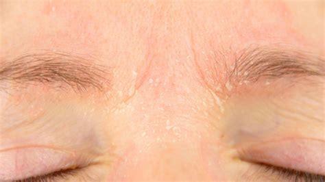 dermatite seborroica alimentazione dermatite seborroica cause e sintomi saperesalute it