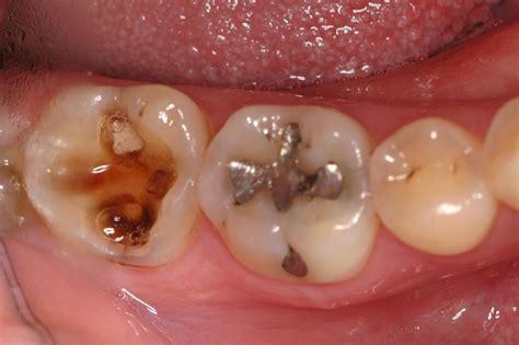 info ilmiah pengobatan tradisional gigi berbulang