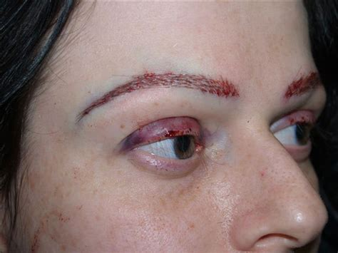 Eyelash Transplant Surgery Becames Popular 2 by Patient 49 Eyebrow And Eyelashes Photo Gallery