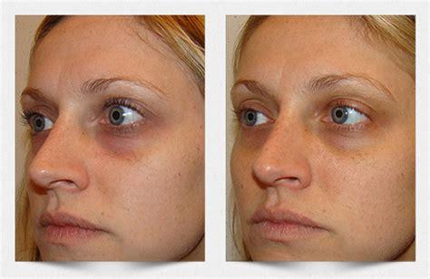 imagenes ojos desvelados carboxiterapia para las ojeras despigmenta de forma