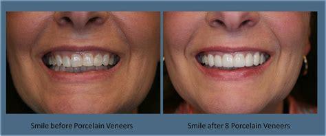 porcelain veneers britt dental center raleigh nc dentist