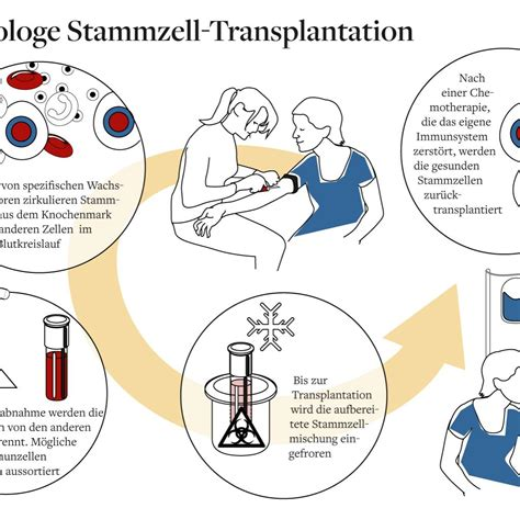 Home Design Blogs 2013 stammzell transplantation wenn das immunsystem