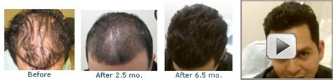 new hair growth discoveries causes of hair loss protein shakes fat burners diet