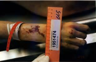 Lisa mcpherson s autopsy pictures various sizes resolutions