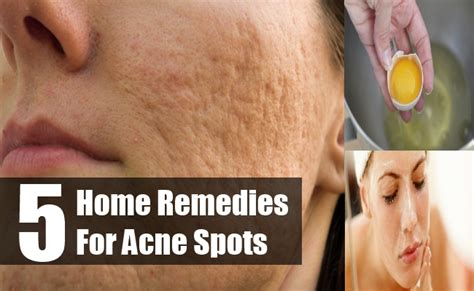 5 simple home remedies for acne spots treatments