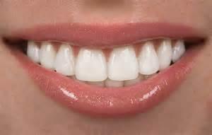 Cosmetic Dentist Porcelain Veneers Cost Benefits Risks Lifespan