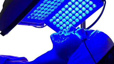 blue light treatment for the at home blue light led acne treatments