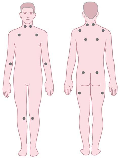 reuma test diagnose