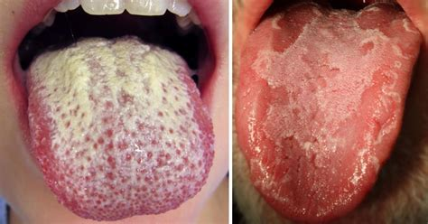 pale tongue what causes and how to fix a white tongue