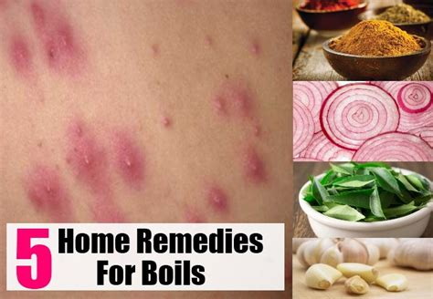 5 best home remedies for boils health care a to z