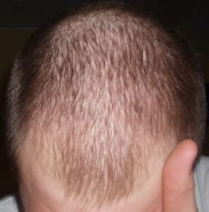 cicatricial pattern hair loss hair loss treatment in delhi india for men women hair