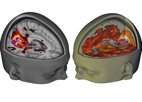 this is your brain on lsd d brief