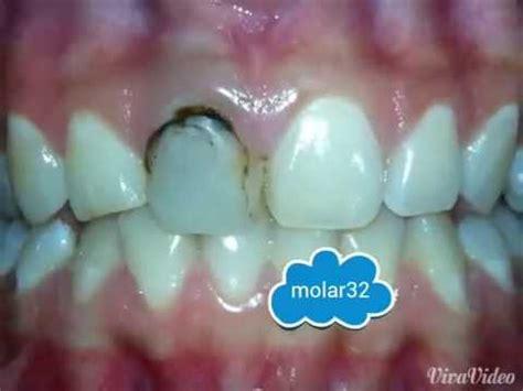 imagenes de negras sin dientes diente negro anterior dr hector toledo molar32 youtube