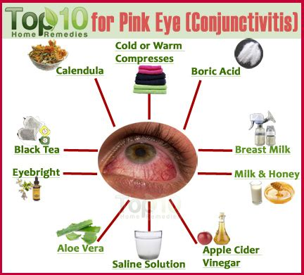 home remedies for conjunctivitis home remedies for pink eye conjunctivitis top 10 home