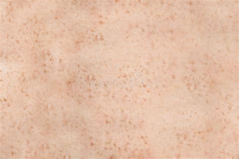 human skin stock image image of detail textured 37276783 freckled human skin stock image image of spotty detail 2579925