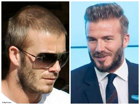 truth behind david beckham s hair transplant rumors