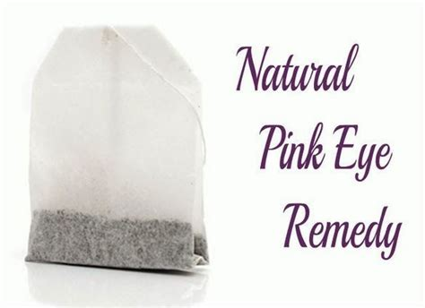 home remedies for pink eye naturally