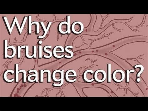 why do bruises change color 12 best herbal home remedies images on