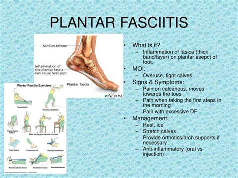 plantar fasciitis symptoms pictures