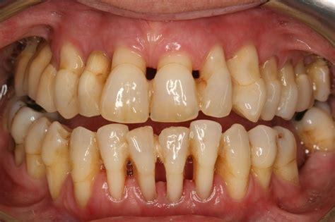 mengenal periodontitis konimex pharmaceutical laboratories