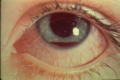 hyphema in dogs related keywords suggestions for hyphema