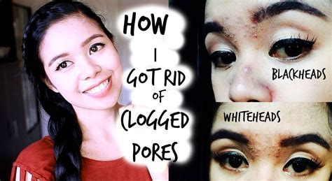 Find Purify My Pores by How I Got Rid Of My Clogged Pores Black Heads White