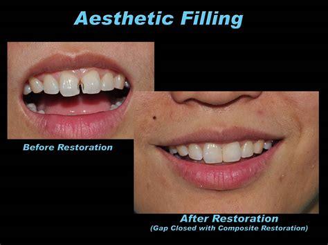 prestige dental care aesthetic filling