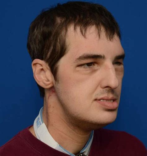 richard norris va man who got full face transplant making amazing